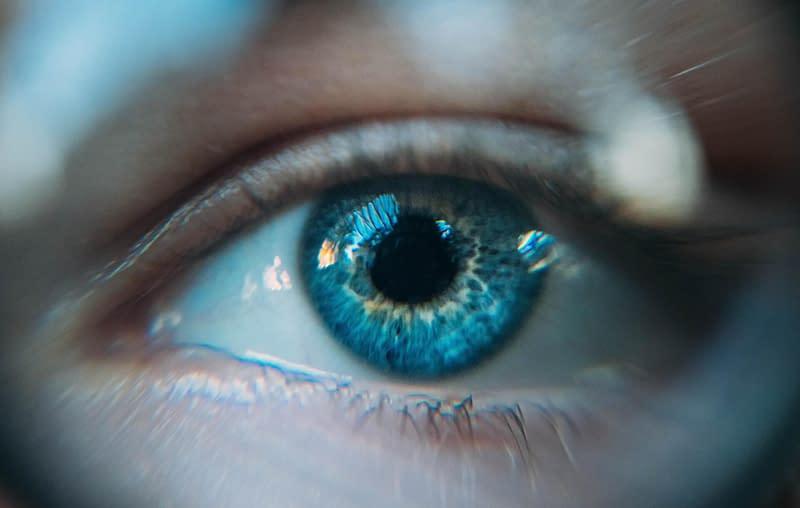 episcleritis close up of eye