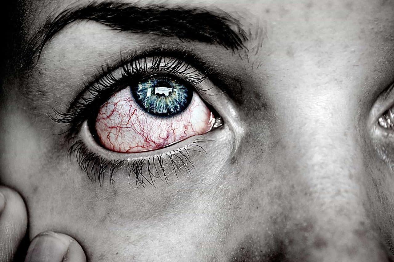 pink eye, corneal injection corneal abrasions