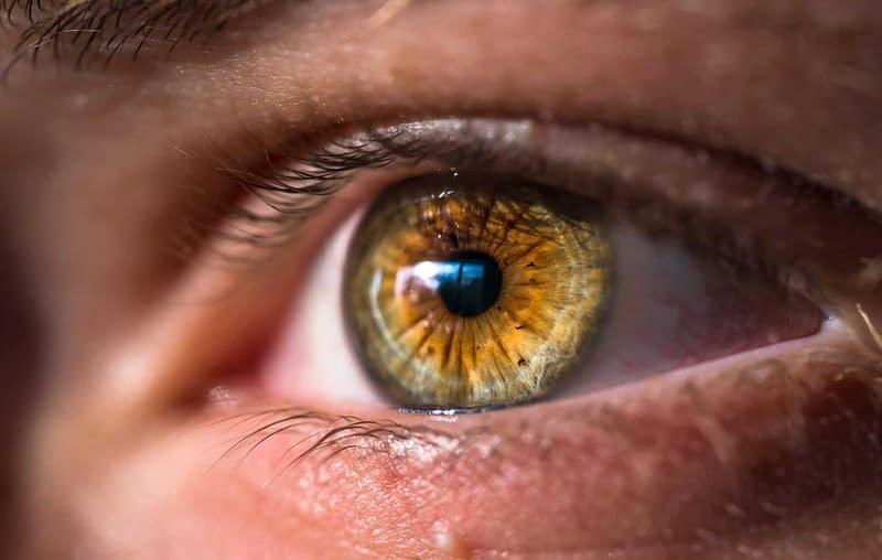 ocular rosacea dry eyes picture of eyelid with hazel eye